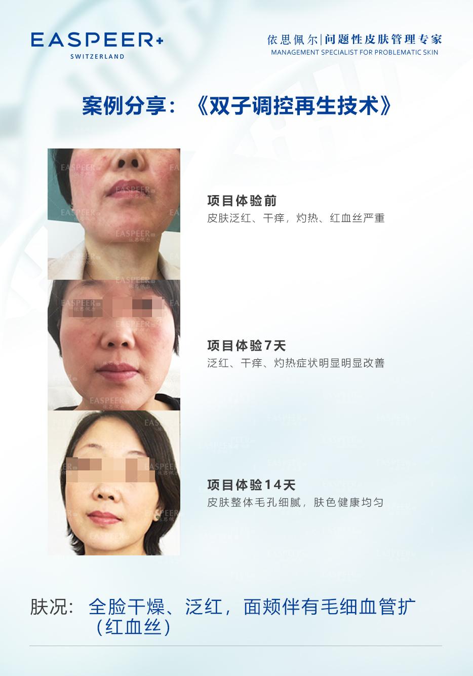 双子调控再生技术01.jpg