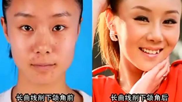 韩国长曲线削下颌角瘦脸