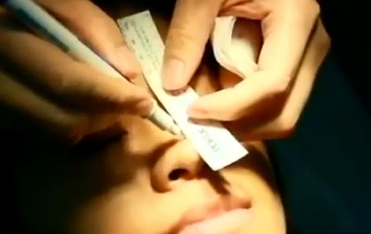 玻尿酸鼻部塑型-自然度