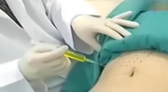 消脂针溶解脂肪?FDA警告:未证实