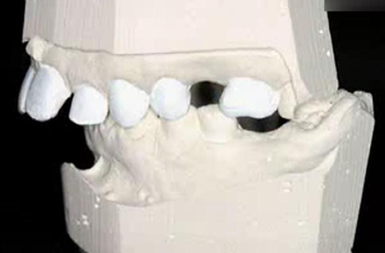 国外种植牙