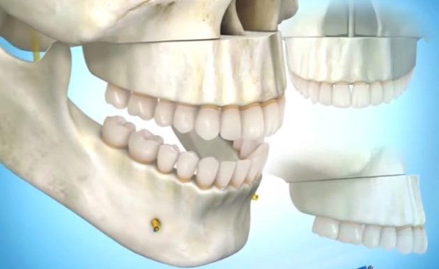 3D模型演示笑龈的正颚手术