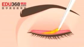 韩国流行的三种双眼皮手术方法
