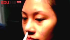 微晶瓷隆鼻