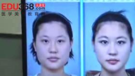 下颌角切除术后复检体验