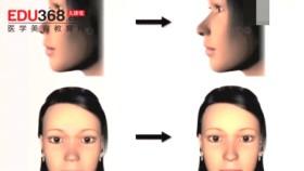 透明质酸隆鼻