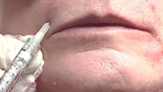玻尿酸注射面部除皱术