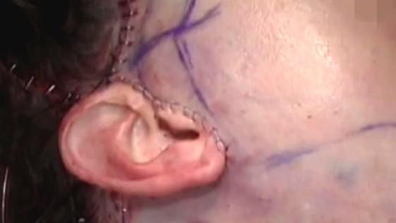 耳前切口面部除皱术