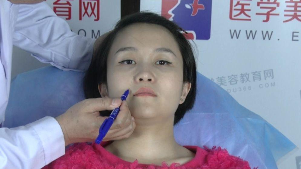 玻尿酸丰鼻唇沟