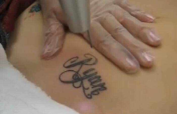 激光去除腹部纹身