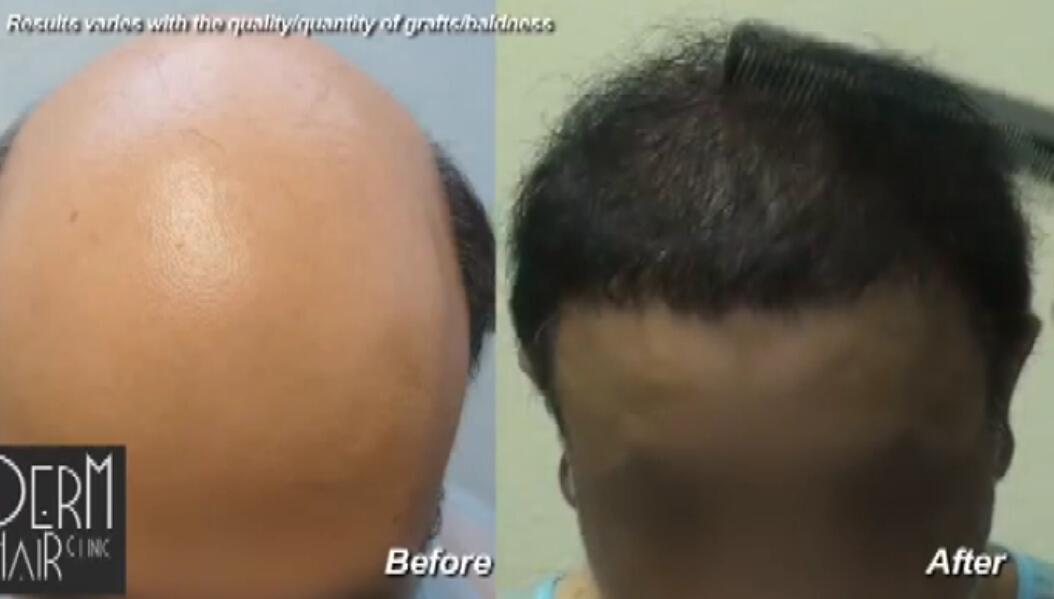 头发恢复和严重脱发-体毛移植