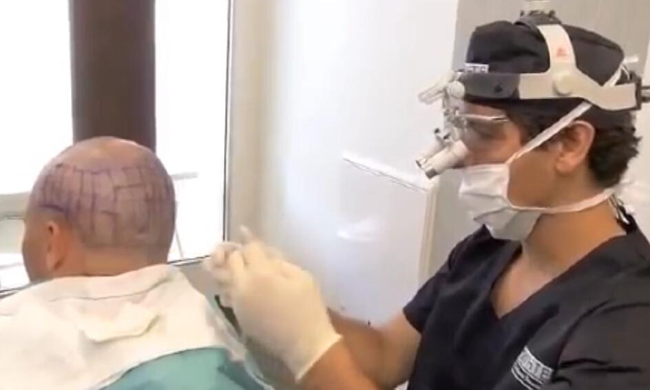 Hair transplantation毛发移植
