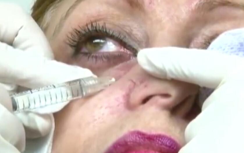 专家演示泪沟注射填充过程