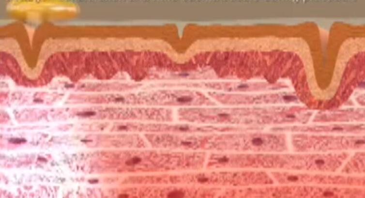 动画解析电波除皱