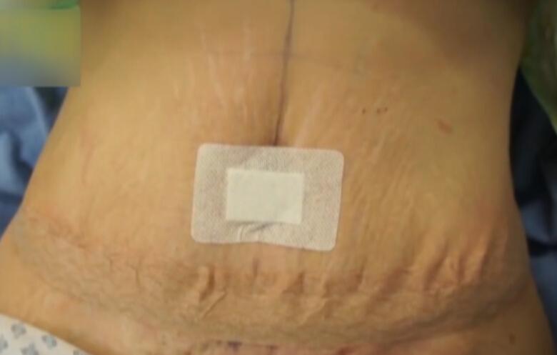 腹部大拉皮手术完整过程