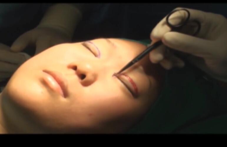 内眦赘皮矫正重睑手术全过程
