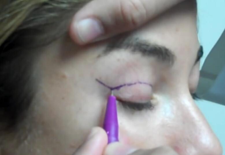 术前做上睑皮肤标记线