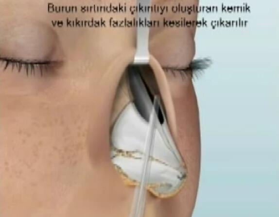 综合鼻整形术