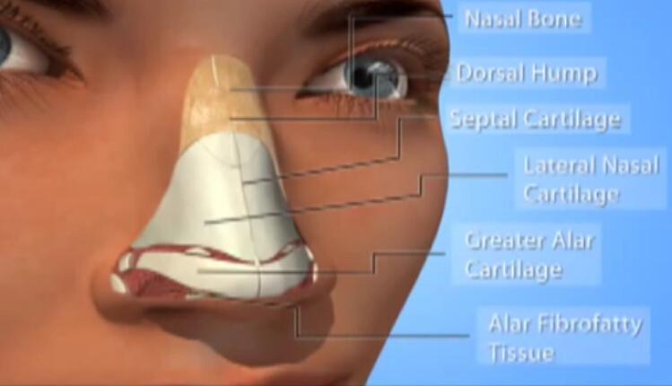 鼻整形术 驼峰鼻整形