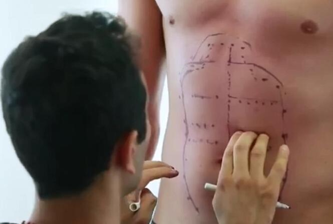 腹部细微脂肪抽吸术