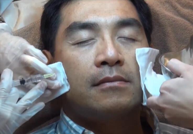玻尿酸微整形治疗泪沟纹 法令纹