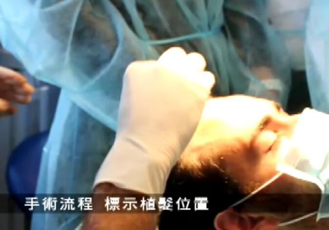 植发不必切头皮 法式无痕自动植发新技术