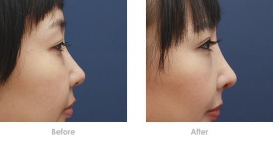 玻尿酸隆鼻前后对比图