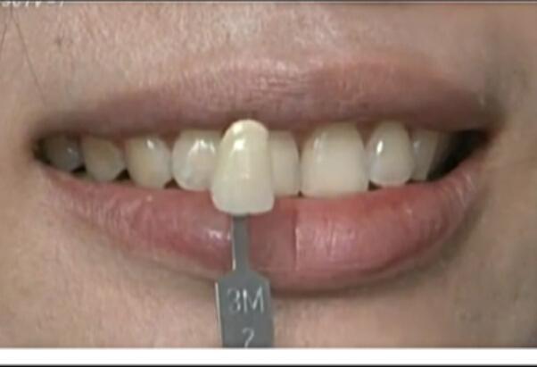 生活调查之牙齿美白大调查