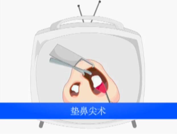 鼻部整形之垫鼻尖术动画演示视频