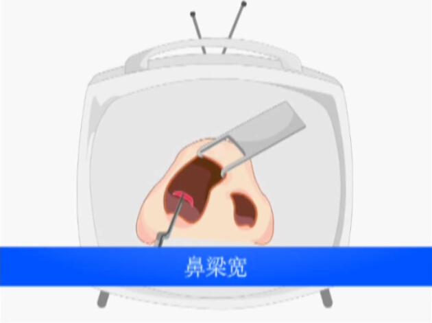 鼻整形手术宽鼻梁缩窄动画演示视频