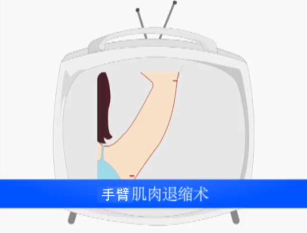 手臂吸脂术动画演示视频