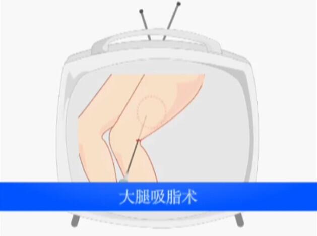 大腿吸脂术动画演示视频