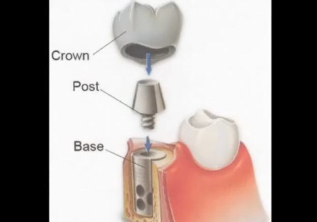 口腔种植牙动画演示过程