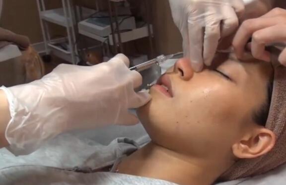 玻尿酸注射隆鼻隆下巴医生实操