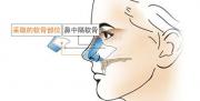 采用鼻中隔软骨垫鼻尖的护理对策