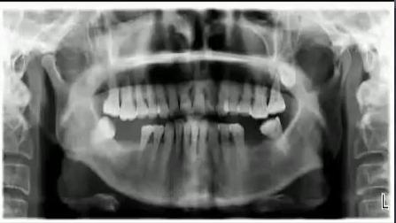 口腔健康牙齿手术和烤瓷冠修复过程