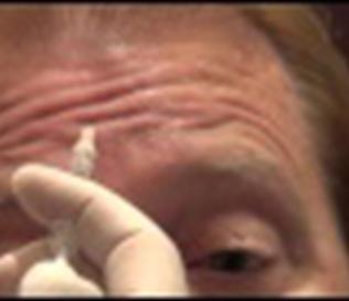 肉毒素祛除抬头纹