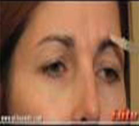 肉毒杆菌注射治疗眉间纹、鱼尾纹
