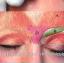 肉毒杆菌注射祛除眉间纹
