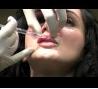 玻尿酸注射丰满唇部