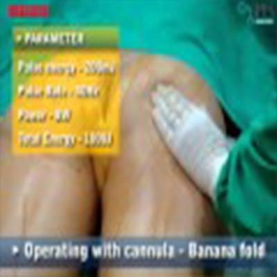 整形外科手术:大腿部抽脂