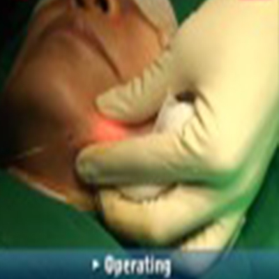 整形手术:下巴部位镭射溶脂