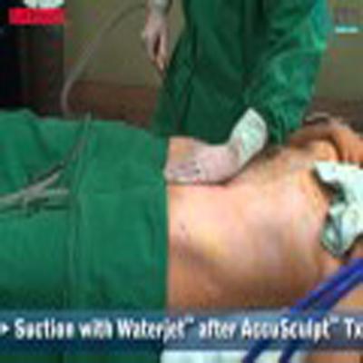整形外科手术:腹部抽脂溶脂