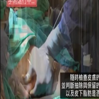 整容外科手术:手臂部的吸脂