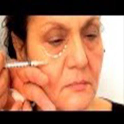 玻尿酸注射治疗眼袋、法令纹