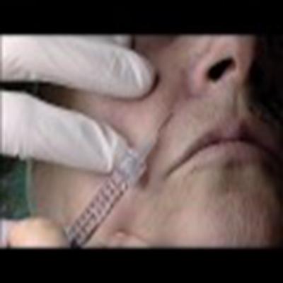 玻尿酸填充面部、丰唇