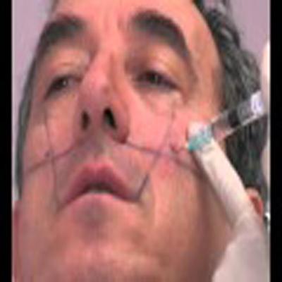 颚骨注射填充消除凹陷