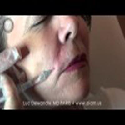 无痛医学美容:鼻唇沟的治疗过程