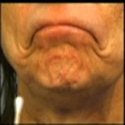脖颈部肉毒素提升除皱