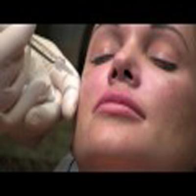 注射液体填充剂隆颊